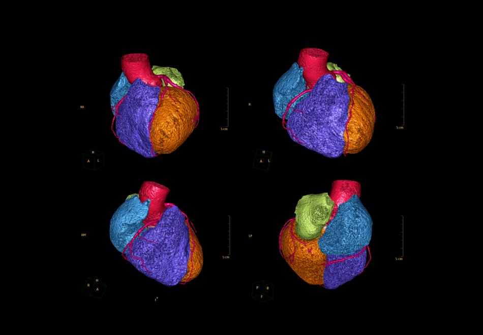 Cardiac CT in pseudo-colours